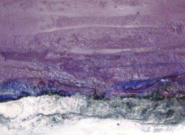 2011-4 LILA